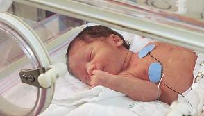 إصفرار الطفل الولادة معالجته ..؟؟ bntpal_1425490929_13