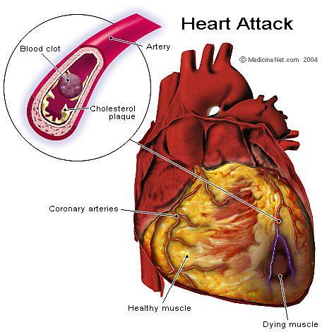 النوبة القلبية Heart Attack bntpal_1438590417_60