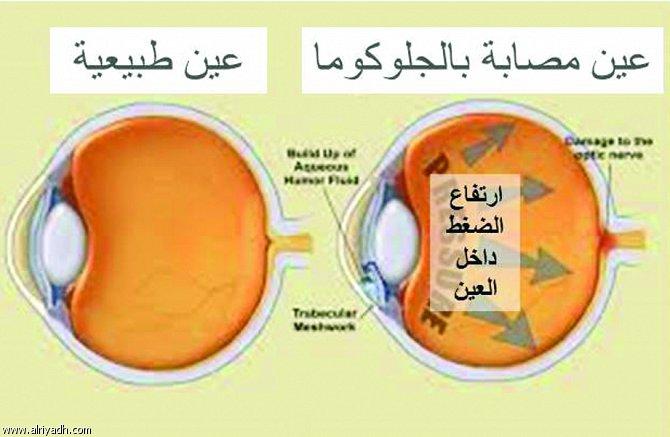 توقف التنفس أثناء النوم يؤثر bntpal_1440971183_53